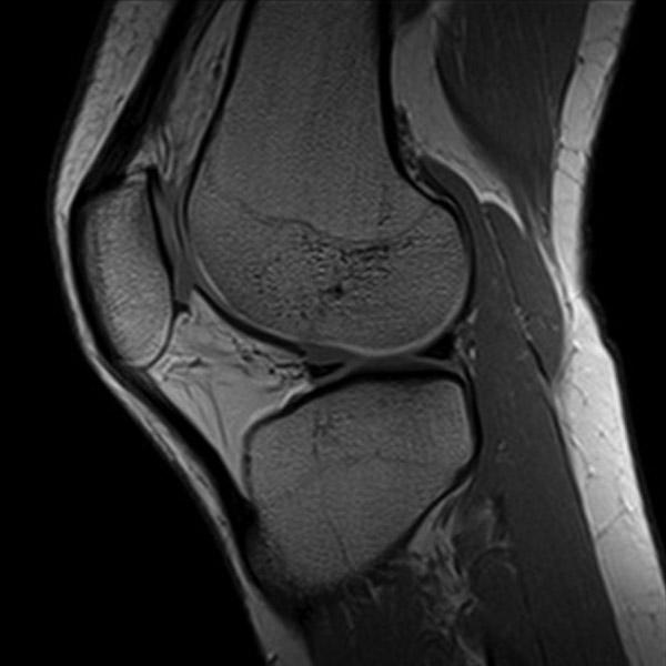 Šta je MRI Kolena