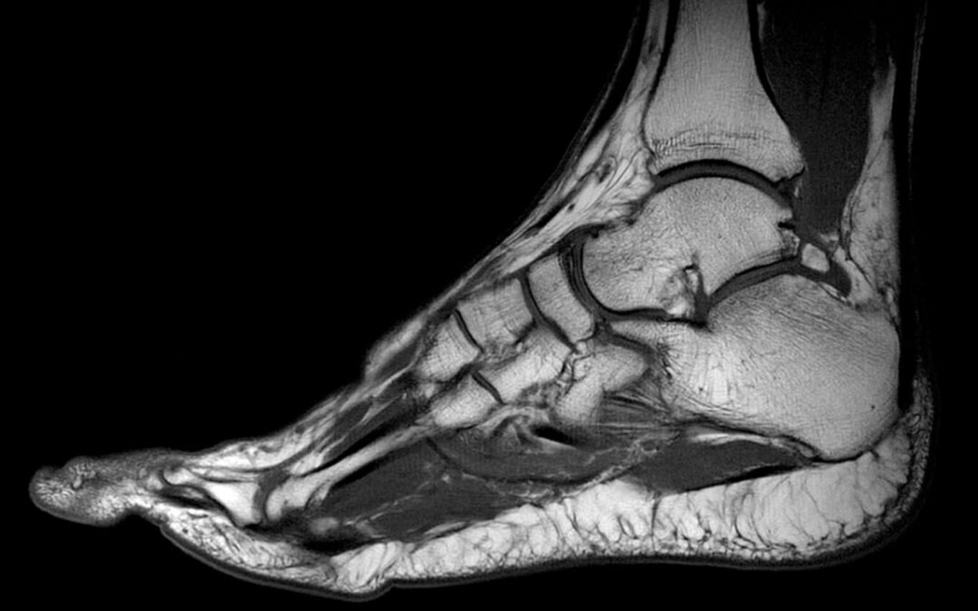 MRI Stopala i skočnog zgloba